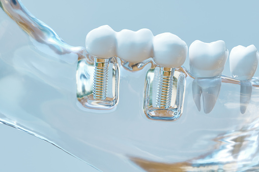 A model from Advanced Dental Associates in San Antonio, TX showing multiple tooth implants
