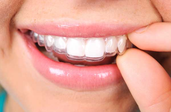 Woman using clear aligner
