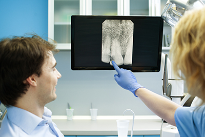 Understanding the Benefits of Panoramic X-rays